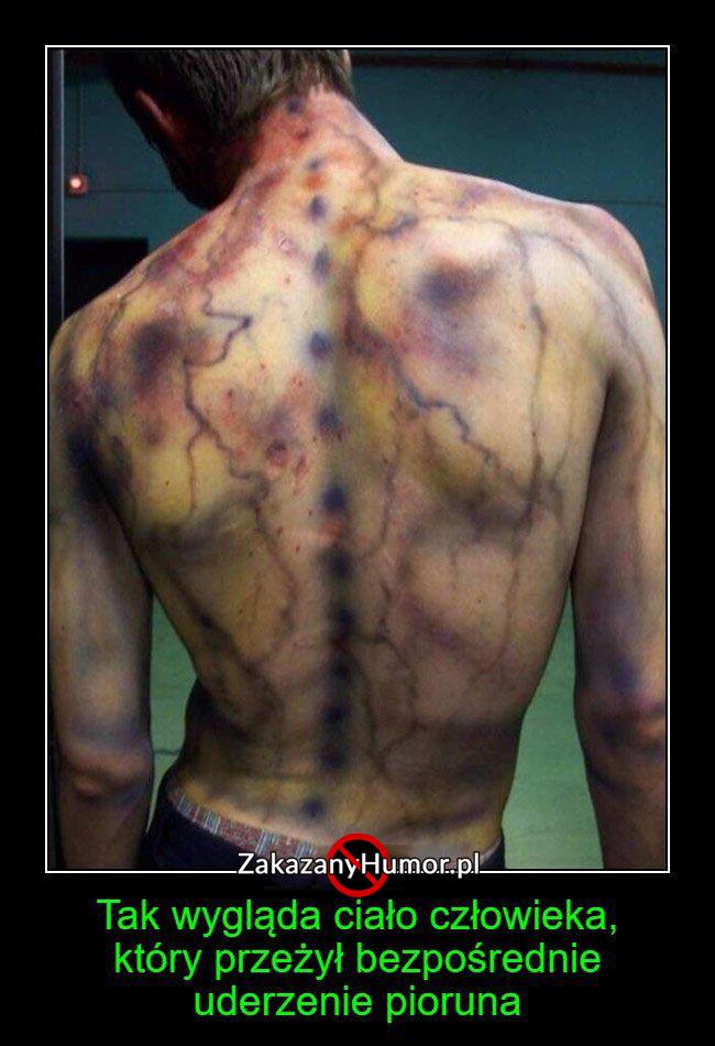 Tak-wygląda-ciało-człowieka...